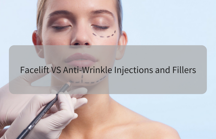 Facelift VS Anti-Wrinkle Injections and Fillers